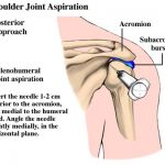 Posterior approach for shoulder arthrocentesis