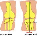 Wedge Osteotomy