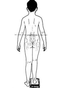 leg length discrepancy assessment by block method