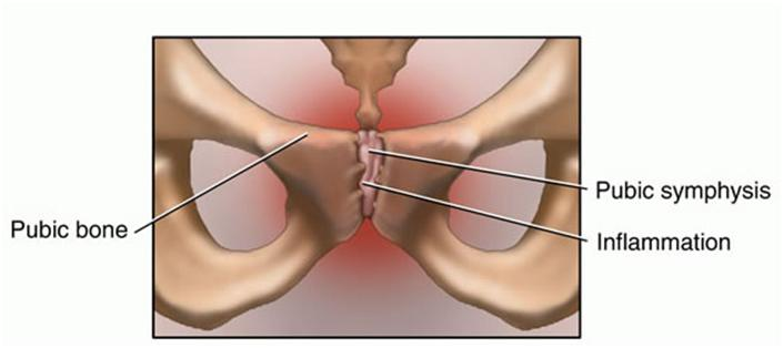 Osteitis Pubis Presentation And Treatment Bone And Spine