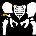 salter pelvic osteotomy