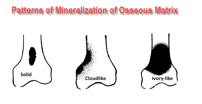 tumor mineralization patterns of osseous matirx