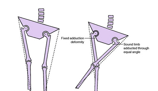 True and Apparent Leg Length Measurement | Bone and Spine