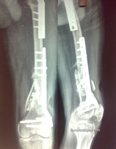 A patient with distal and proximal fractures fixed surgically