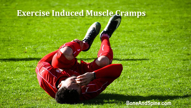 Exercsie Associated Muscle Cramps