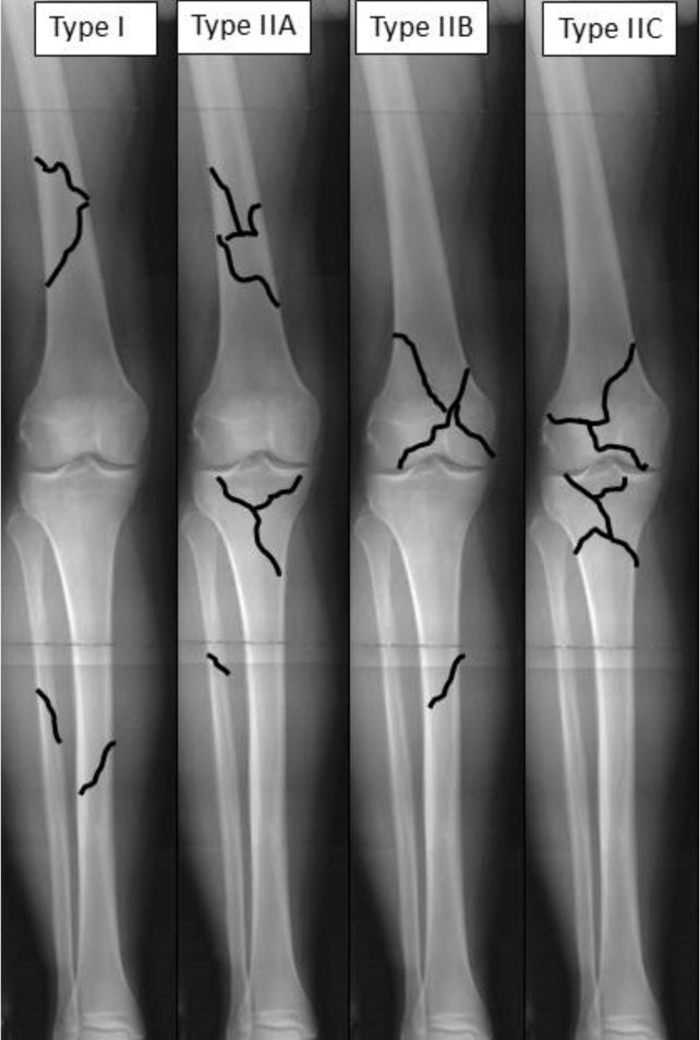 Fraser Classification of Floating Knee Injuries
