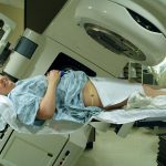 Radiation therapy to the pelvis