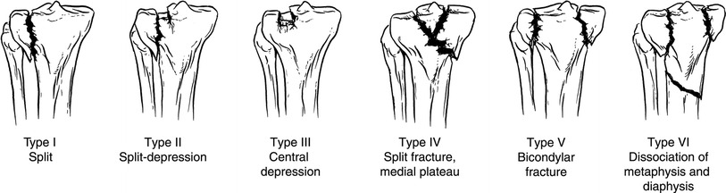 Schartzker classification of Tibial Palteau