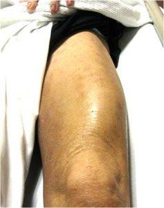 infectious myositis of quadriceps