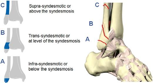 AO OTA Clssification of Malleolar Fractures
