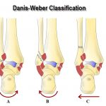 Danis Weber Classification of Malleolar Fractures