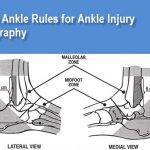 Ottawa ankle rules