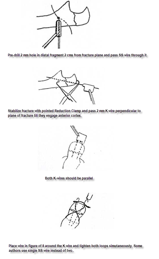 tension band wiring procedure bone and spine  band wiring diagram #15