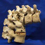 kyphosis in tubercular spine