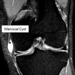 MRI Image of Meniscal Cyst