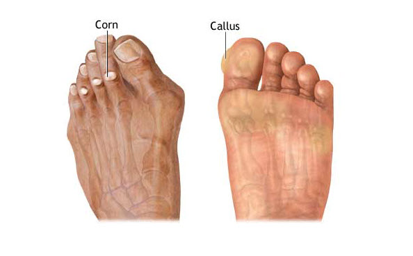 corn callus treatment
