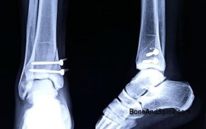 Postoperative AP and lateral x-rays of ankle showing well reduced fracture and satisfactory screw replacement