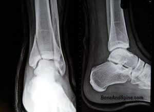 Preoperative x-ray showing vertical fracture of medial malleolus