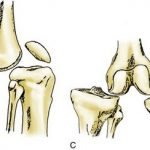 Kennedy classification of knee dislocation