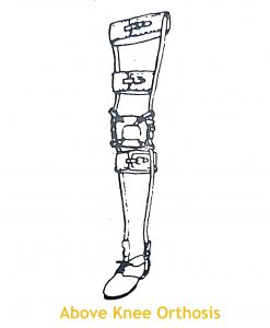 Lower Limb Orthoses – Components and Functions | Bone and Spine