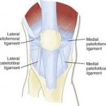 Patella ligament stabilizers