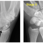 Stage I and II of Perilunate injuries