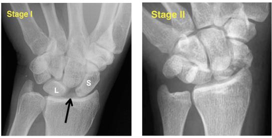 Mayfeild Classificatin of Periluate injuries I and II