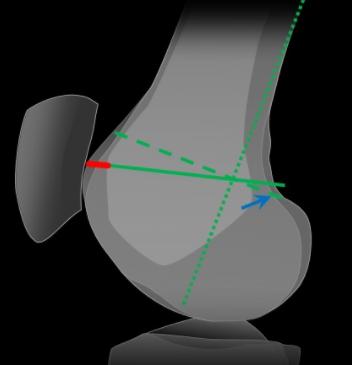 Measurement of trochlear depth for trochlear dysplasia
