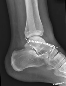 Gissane's Angle Image Credit: Wikipedia