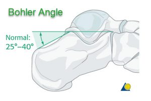 Bohler Angle
