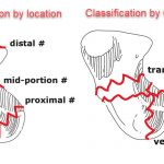 Classification of scaphoid fractures