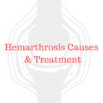 Hemarthrosis causes and types