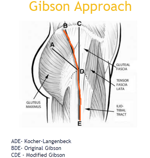 Gibson approach to hip