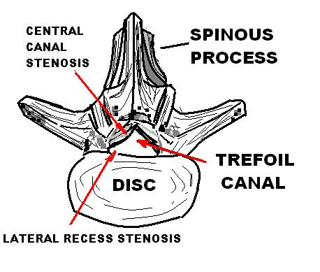 Spinal Stenosis, Lumbar Canal - In public domain