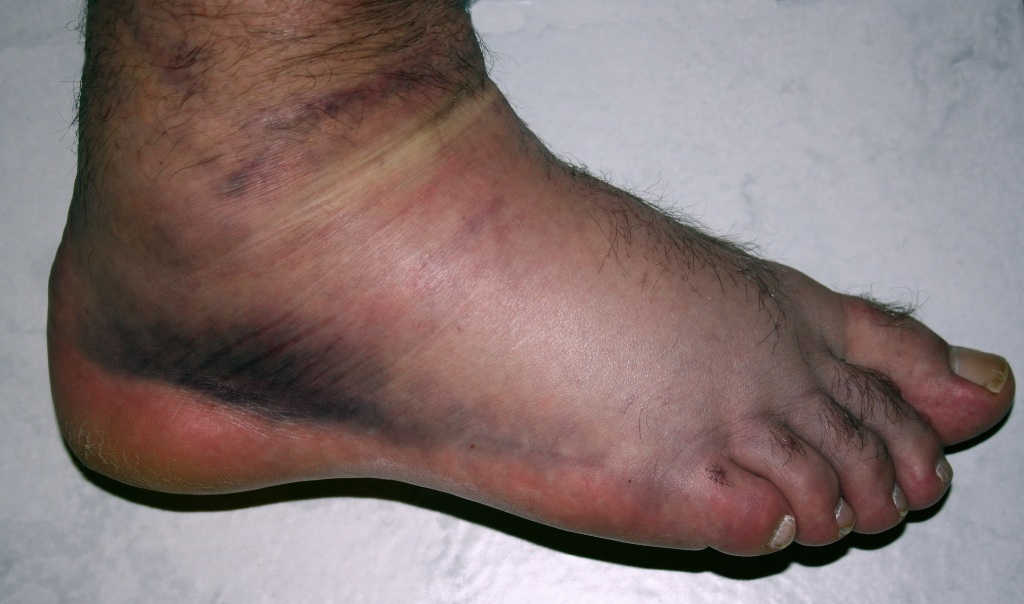 Ankle sprain of Third degree