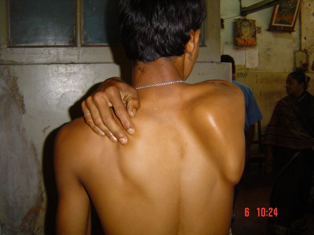Medial Scapular Winging due to Long Thoracic Nerve Palsy
