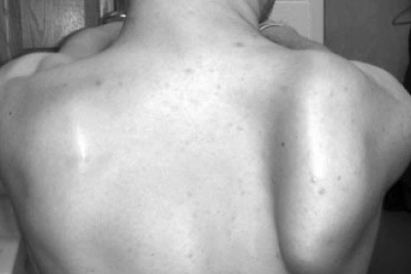 Serratus anterior muscle paralysis causes winging of scapula
