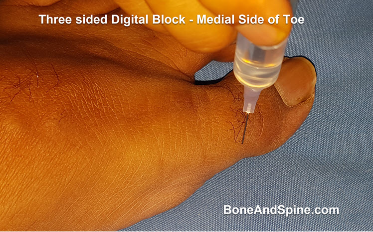 Medial knee Placement for three sided digital block