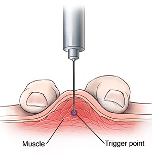 The fingers compress muscle for needle insertion