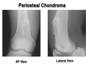 periosteal chondroma of femur