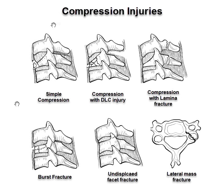Compression injuries of cervical spine for SLICs