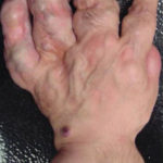 Maffucci syndrome has enchondromas and hemangiomas of soft tissue