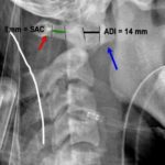 ADI and PADI in atlantoaxial instability