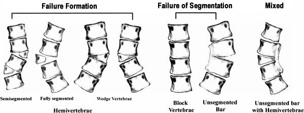 Congenital scoliosis types