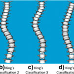 King classification of scoliosis curves
