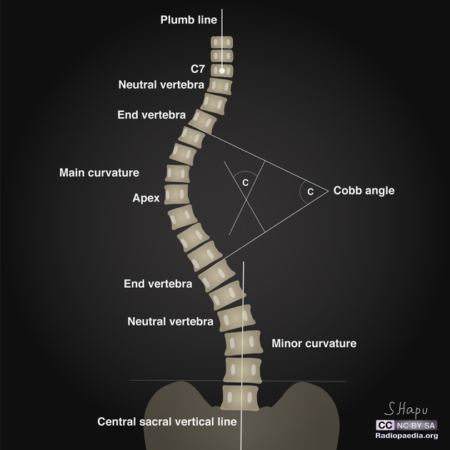 Cobb Angle - Measurement, Significance and Limitations | Bone and ...