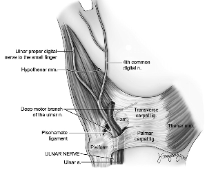 Guyon canal anatomy