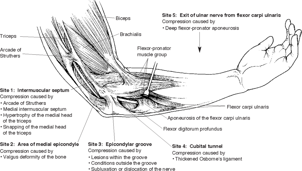 Sites of compression at elbow causing ulnar nerve neuropathy