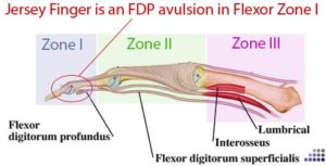 flexor zones of tendons
