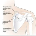 scapulothoracic bursitis bursa locations